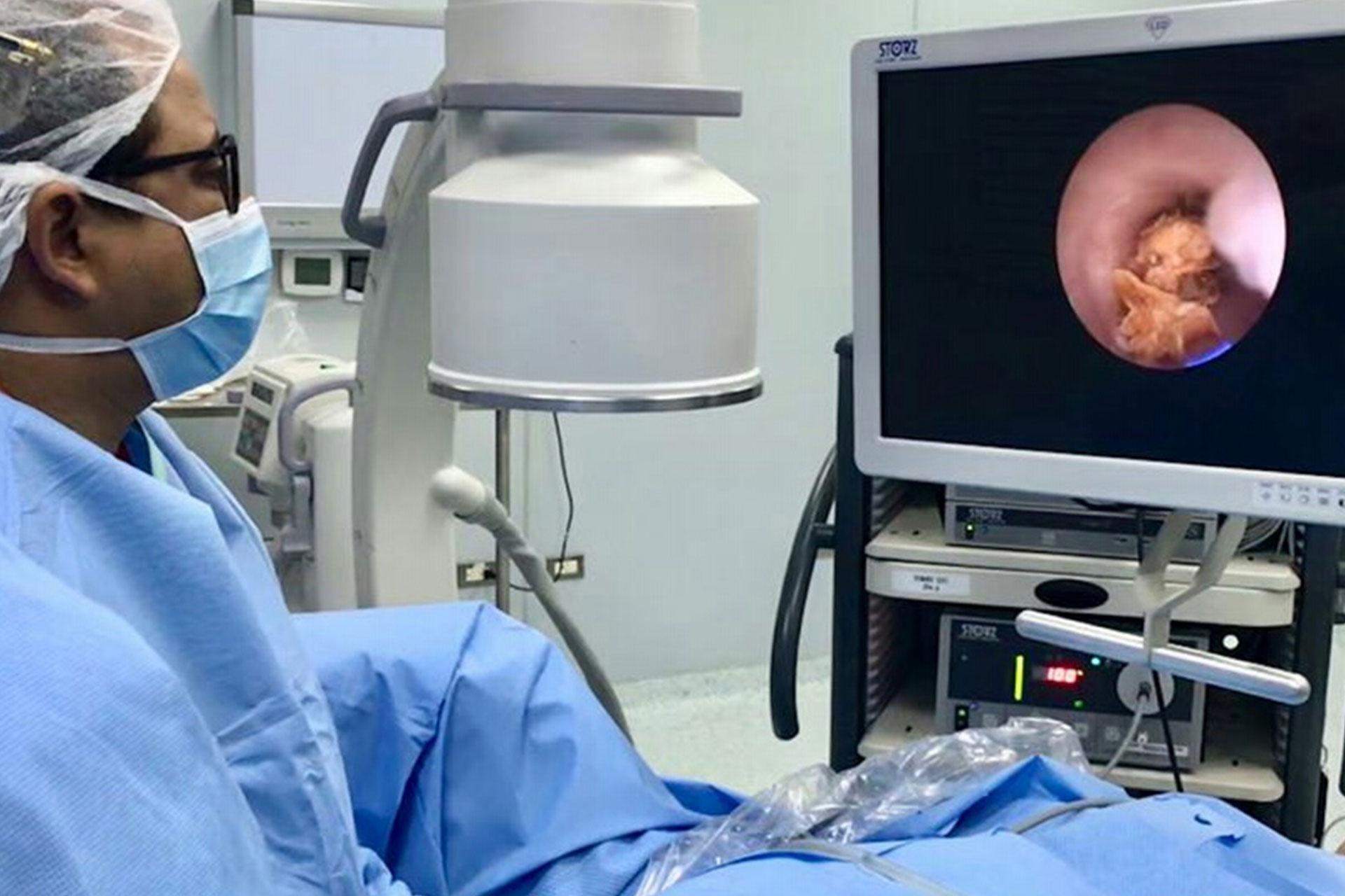 Cirugía Endoscópica Urológica